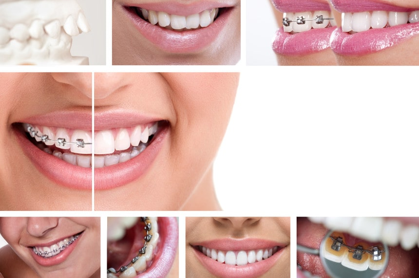 Orthodontie - Clinique Dentaire Granby